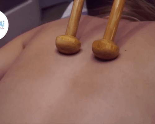 Αποκατάσταση σχήματος σώματος